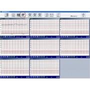 MEDICAL ECONET CMS - Fetal Central Monitoring system
