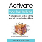 Activate Your Hair Follicles: A Comprehensive Guide to Solving Your Hair Loss and Scalp Problems, Paperback/Beverly Crockett