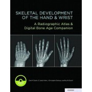 Skeletal development of the hand and wrist a radiographic atlas