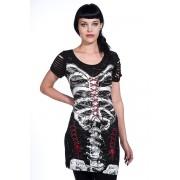 šaty dámské (tunika) BANNED - Corset Skeleton - OBN121